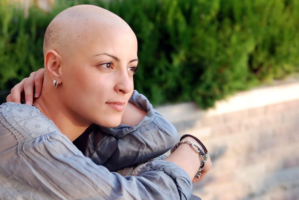 Woman with bald head, Alopecia Totalis
